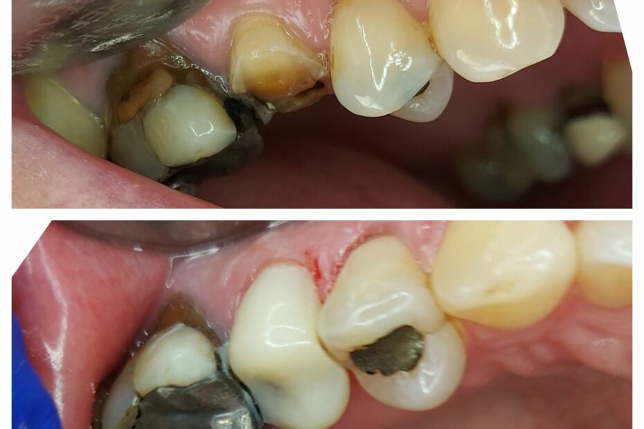 Full tooth reconstruction