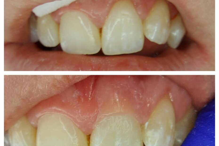 Pink composite placement to look like artificial gum
