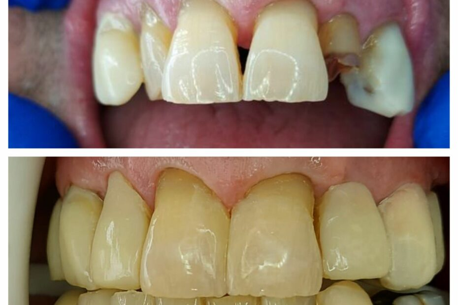 Reconstruction of worn teeth with composite