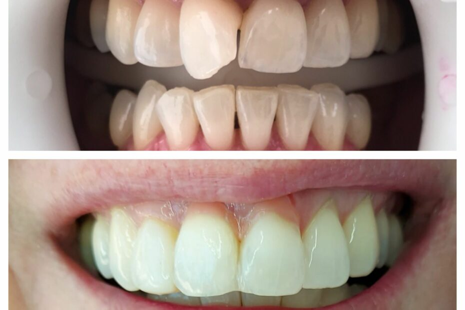 Same day tooth repositioning and pink composite